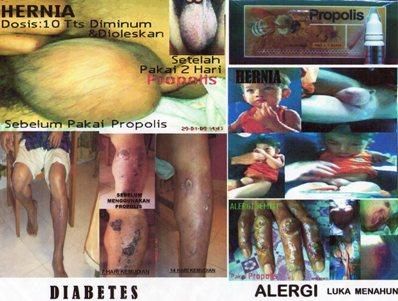 Propolis Mengobati Hernia, Diabetes, dan Alergi